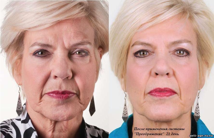 Фото до и после ухода за лицом
